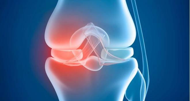Knieschmerzen: Einfacher Symptome-Check für Einsteiger